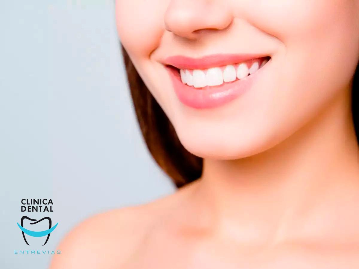 Importancia del remplazo de un diente perdido
